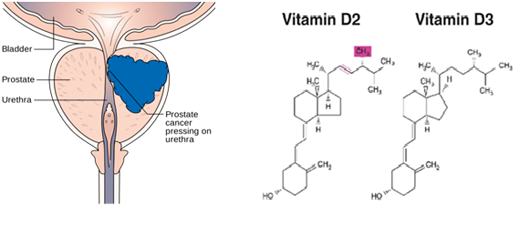 Aggressive prostate cancer can be caused by vitamin D