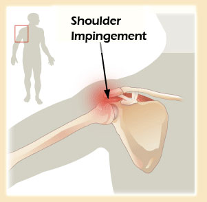 shoulder-impingement-syndrome-2